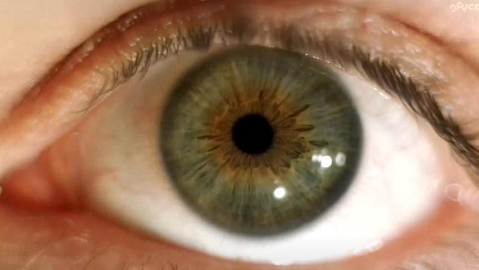 Eye Movement Filmed in Slow Motion